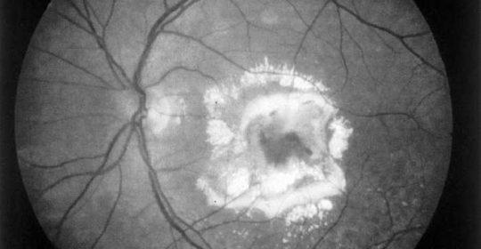 Estudio de Fluorangiografía de Retina