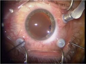 Cirugías del vítreo y la Retina