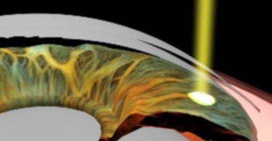 Tratamiento Láser con Láser Yag